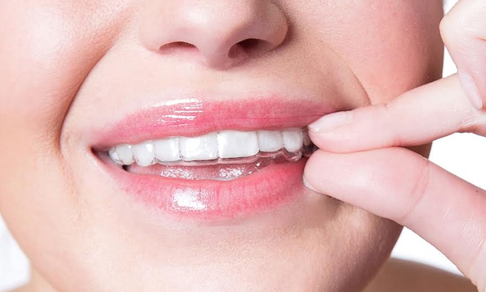 Clear Aligners Questions And Answers