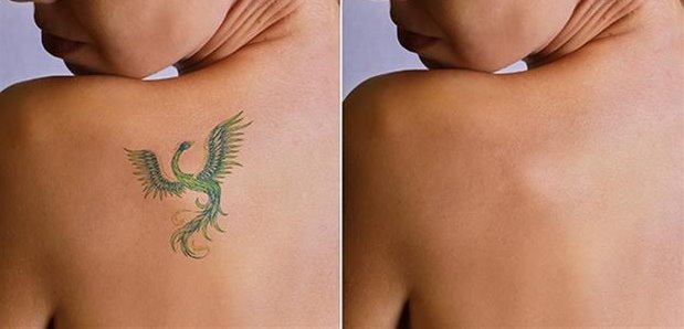 tattoo removal creams, Best tattoo removal creams